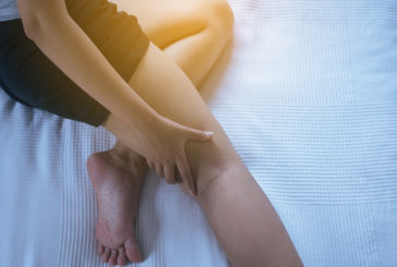 Let's talk about Deep Vein Thrombosis with Dr Alice Fitzgibbon